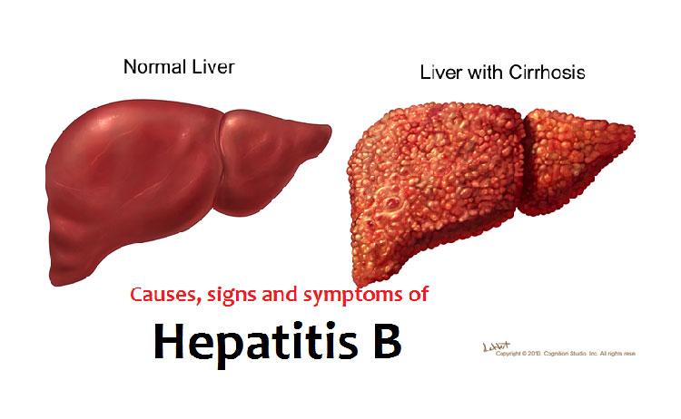 اعراض فيروس الكبد الوبائي بي